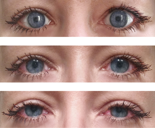 Warum Rote Augen Gras